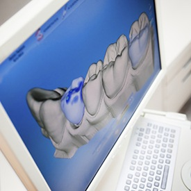 Digital smile design software