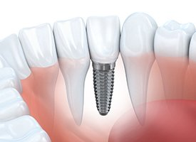 Implant supported dental crown animation