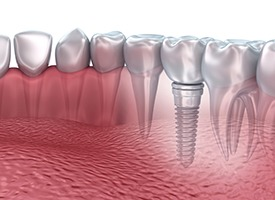 Animation of implant-retained restoration