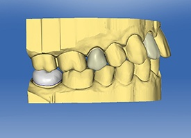 CEREC smile design